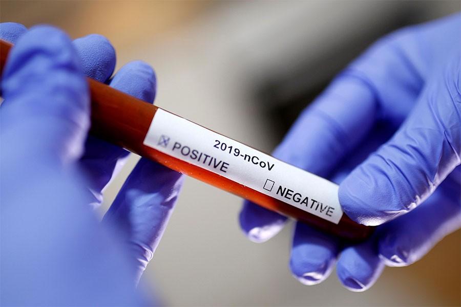 नेपालमा काेराेना  : 'पछिल्लो २४ घण्टामा २३६४ मा भाइरस संक्रमण  पुष्टि '